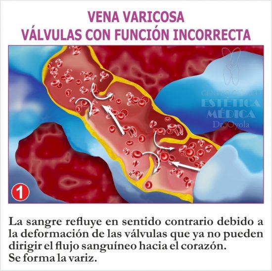 Vena varicosa. Válvulas con función incorrecta