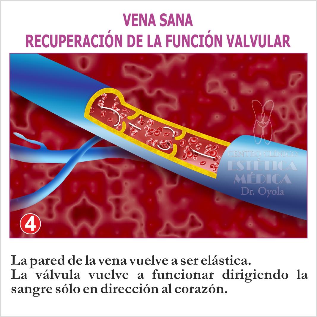 Vena sana. Recuperación de la función vascular