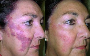 tratamiento de angiomas en Cáceres con láser, tratamiento de angiomas antes y después, eliminación de angiomas en Cáceres