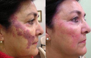 tratamiento de angiomas en la cara, tratamiento de angiomas en España, tratamiento de angiomas en adultos