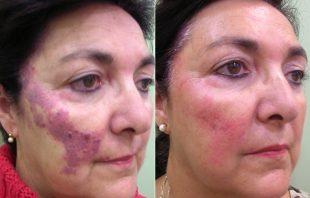tratamiento para eliminar angiomas con láser en clínica de Salamanca , antes y después de eliminar angiomas, precio de eliminar angiomas cara en Salamanca