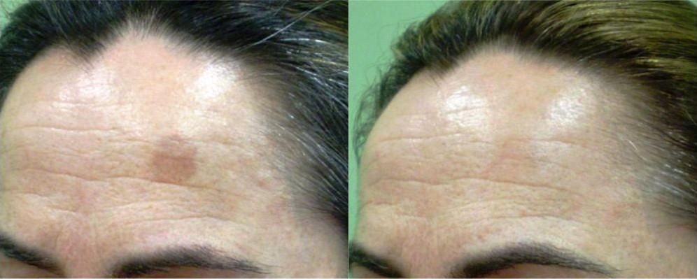 eliminar manchas cara antes y después