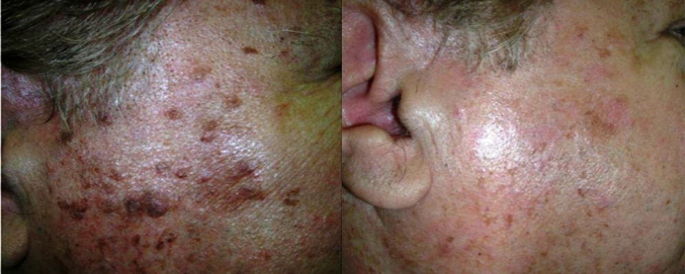 tratamientos manchas faciales antes y después