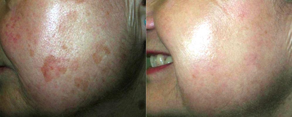 laser para eliminar manchas de la cara, quitar manchas cara dermatologo precio