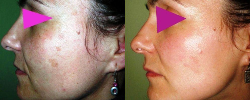 precio de quitar manchas con láser, eliminación de manchas láser, láser para quitar manchas de acné