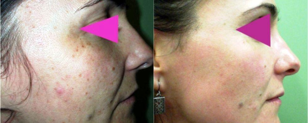 tratamiento facial manchas, quitar manchas cara láser, eliminación manchas cara, tratamiento laser manchas en la cara