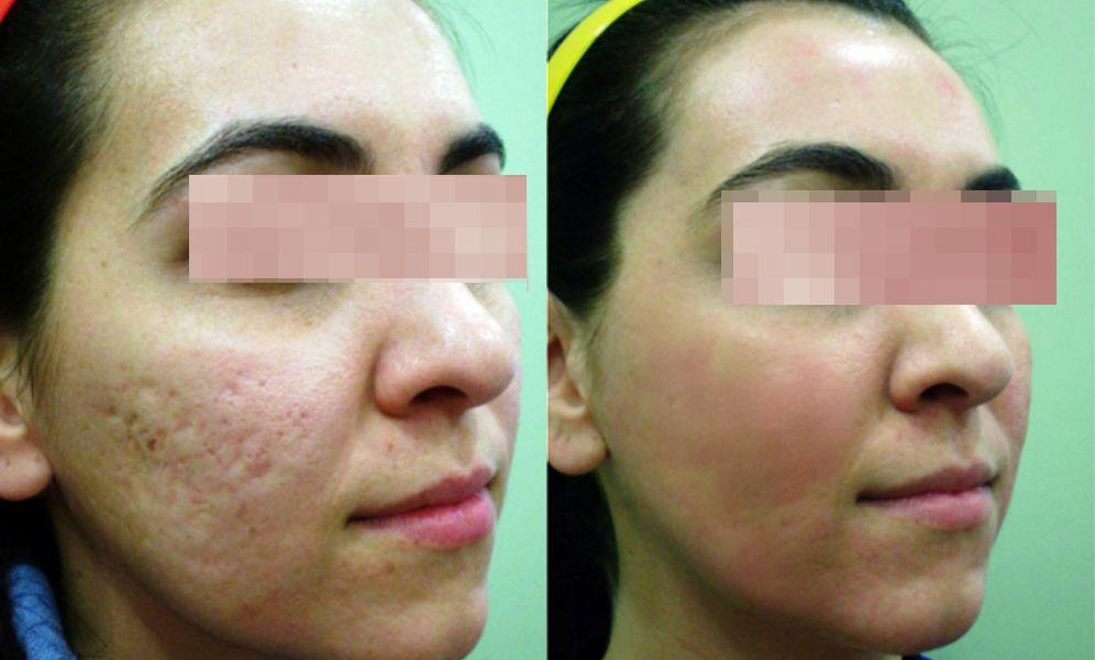 tratamiento del acné con láser en Salamanca precio, cuanto cuesta tratamiento cicatrices acné, tratamiento cicatrices de acné antes y después
