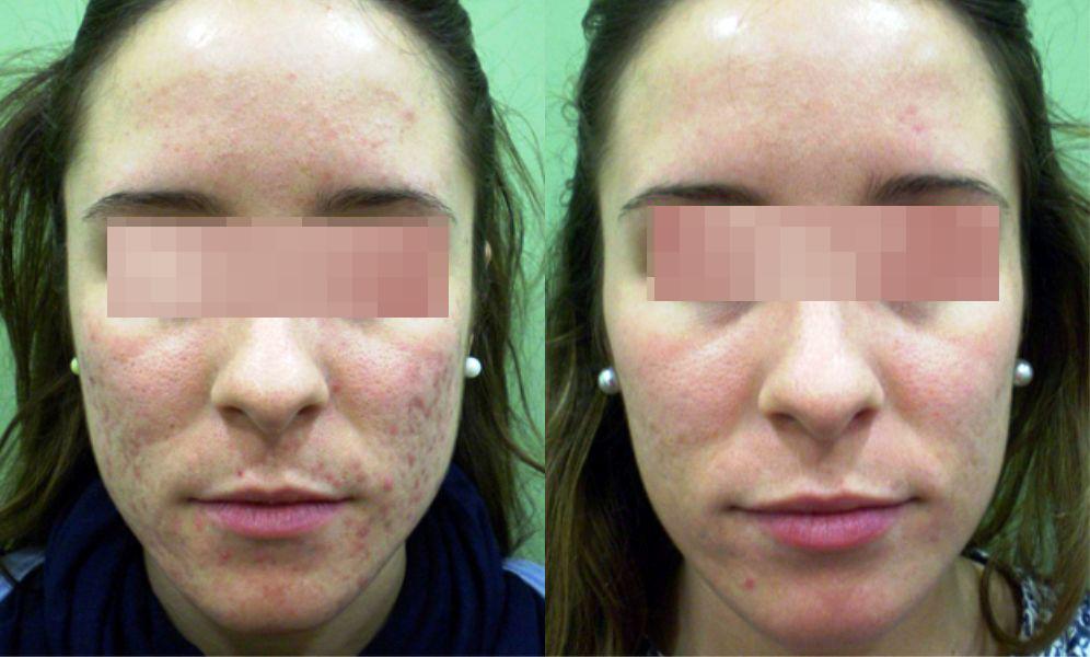 tratamiento del acné con láser en Cáceres precio, resultado tratamiento cicatrices de acné, eliminación de marcas de acné con láser, tratamiento láser para marcas de acné en Cáceres