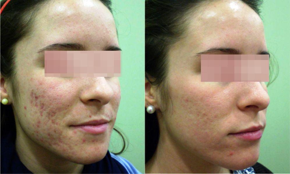 láser para cicatrices de acné, tratamiento estético láser para eliminar marcas de acné, eliminación de cicatrices de acné con láser precio