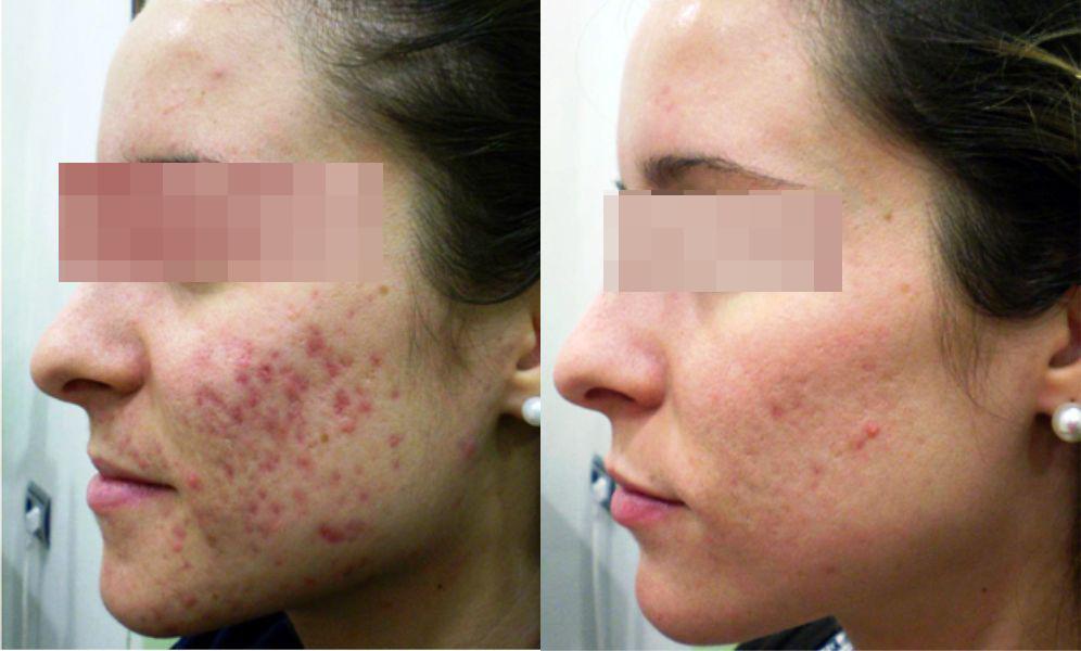 láser cicatrices acné, antes y después manchas de acné, luz pulsada acné, tratamiento del acné con láser precio, tratamiento de cicatrices de acné con láser