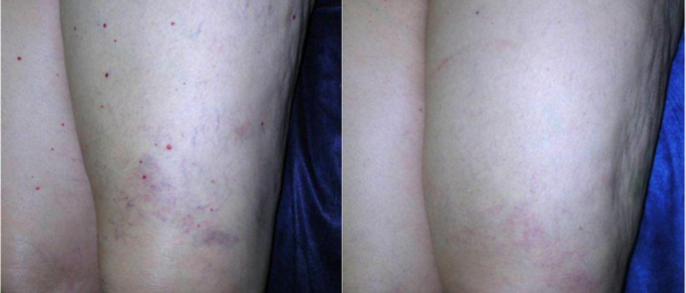 Eliminar puntos Rubí del la pienas, tratamiento para quitar puntos Rubí y microangiomas de la pierna antes y después, eliminar puntos rubí de la pierna