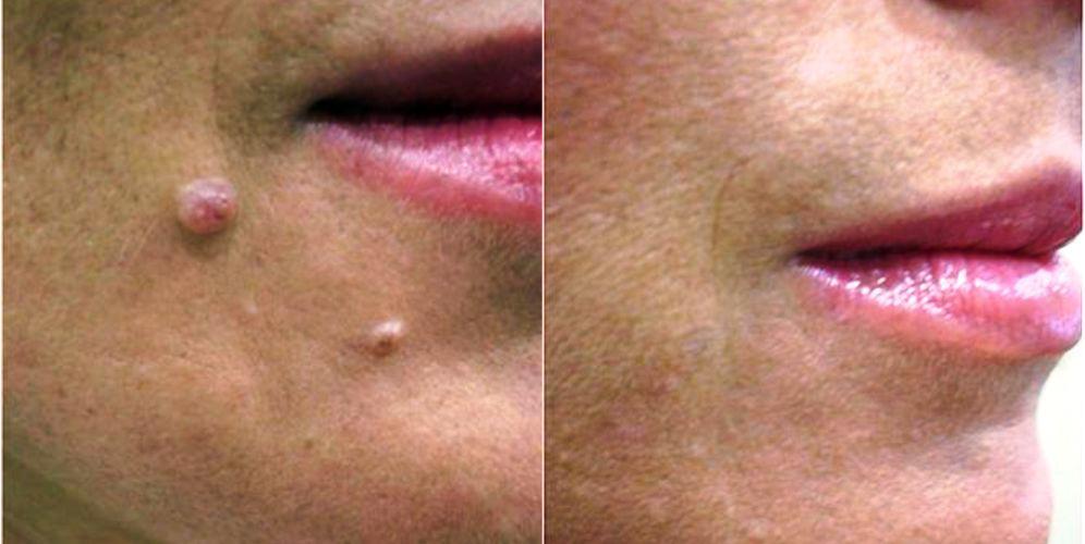 Antes y después de quitar verrugas con láser, verrugas tratamiento antes y después