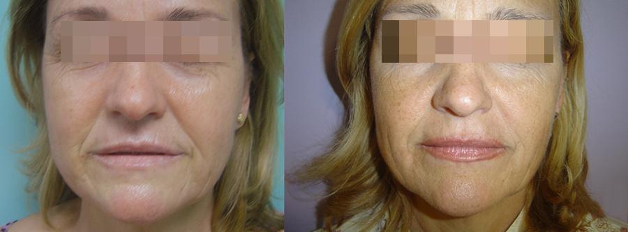 remodelación facial, remodelacion facial antes y después