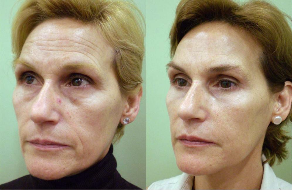antes y después de bioplastia facial
