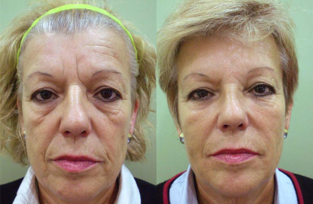 bioplastía facial cuanto cuesta, antes y después de bioplastia facial