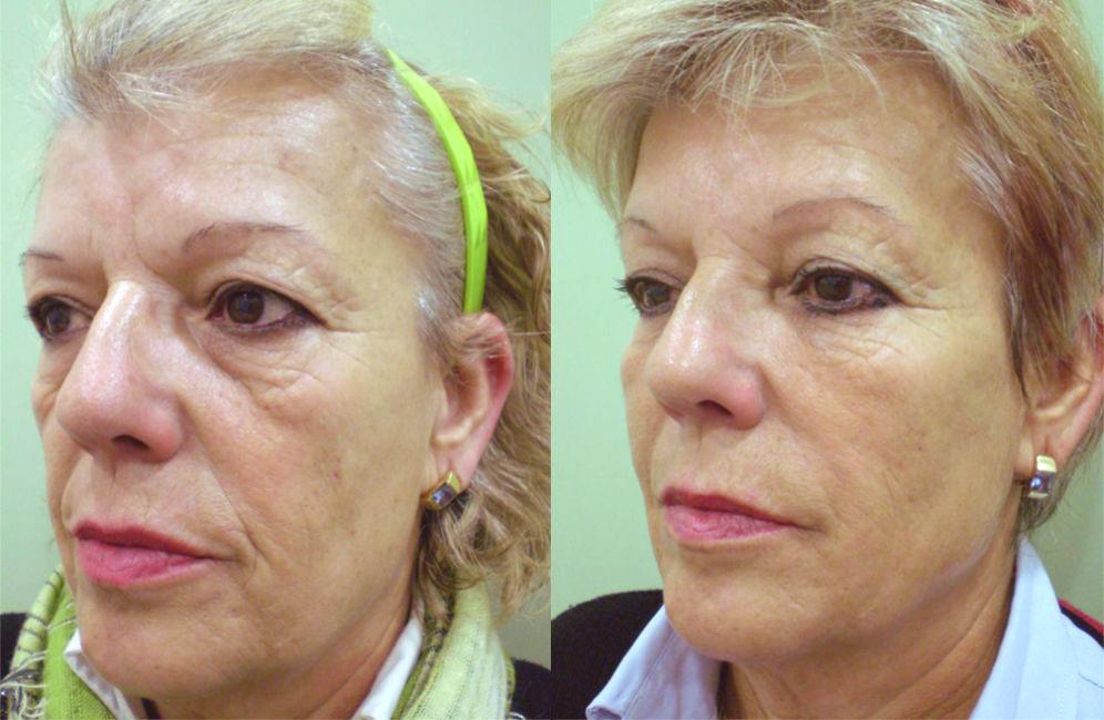 Antes y después de bioplastia, bioplastia facial precio