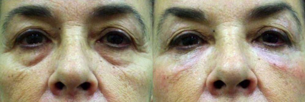 bolsas ojos tratamiento