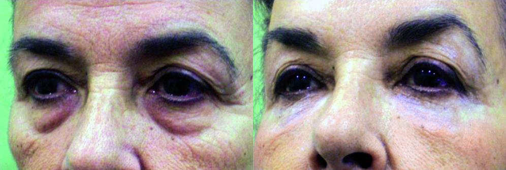 láser bolsas ojos, tratamiento para eliminar bolsas y ojeras, cuanto cuesta eliminar bolsas y ojeras