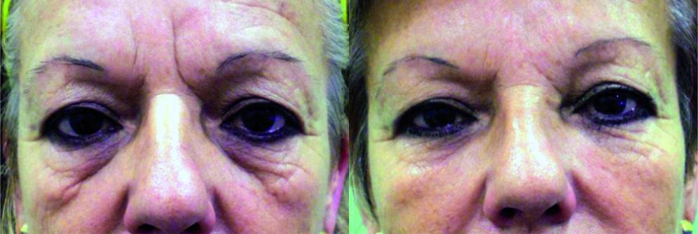 Antes y después de tratamiento ojeras y bolsas en los ojos