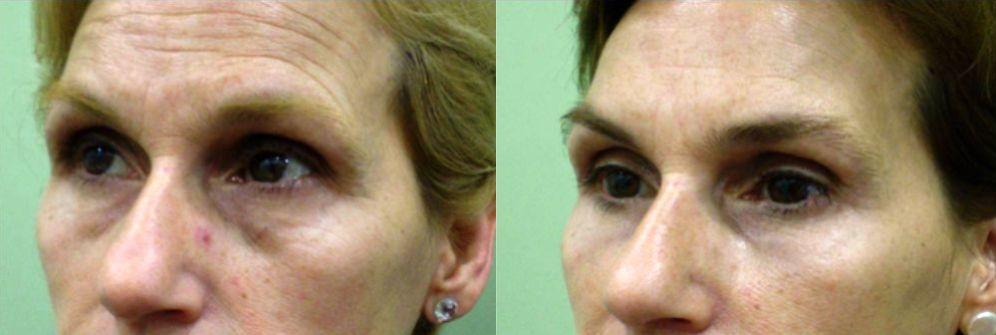 eliminar bolsas y ojeras sin cirugia