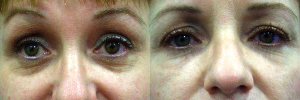 ojeras antes y después del tratamiento