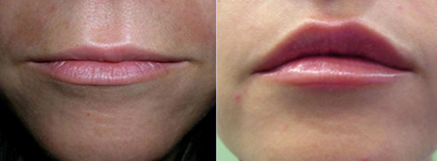 remodelación facial sin cirugía, remodelación facial antes y después