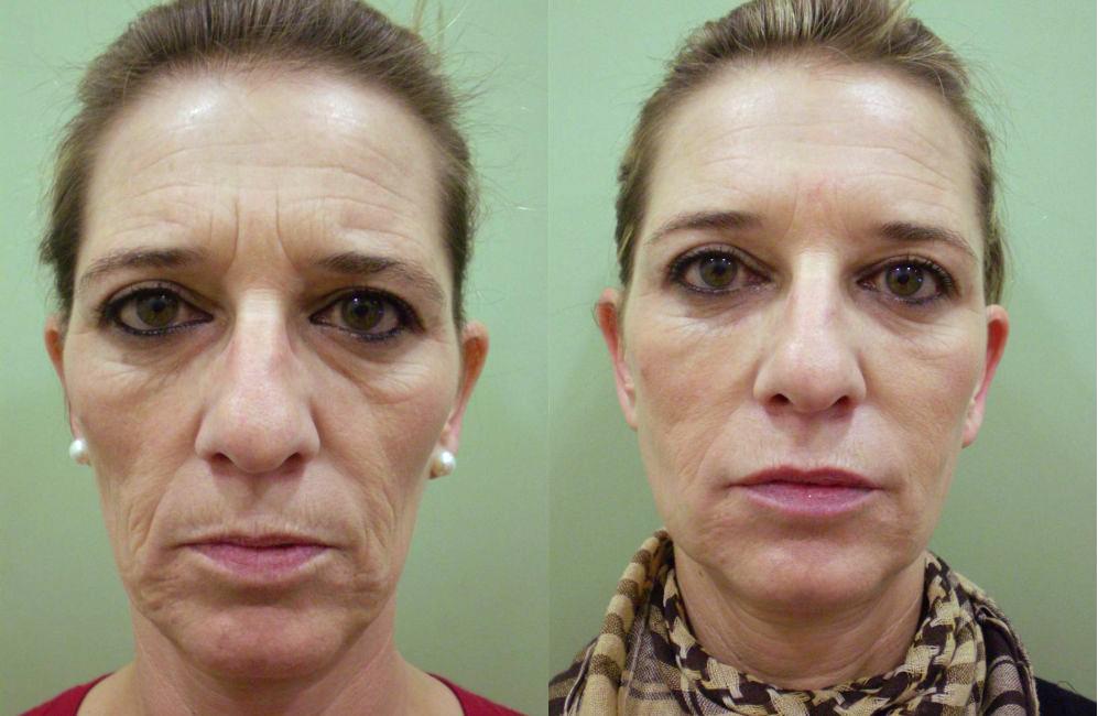 bioplastia facial cuanto cuesta