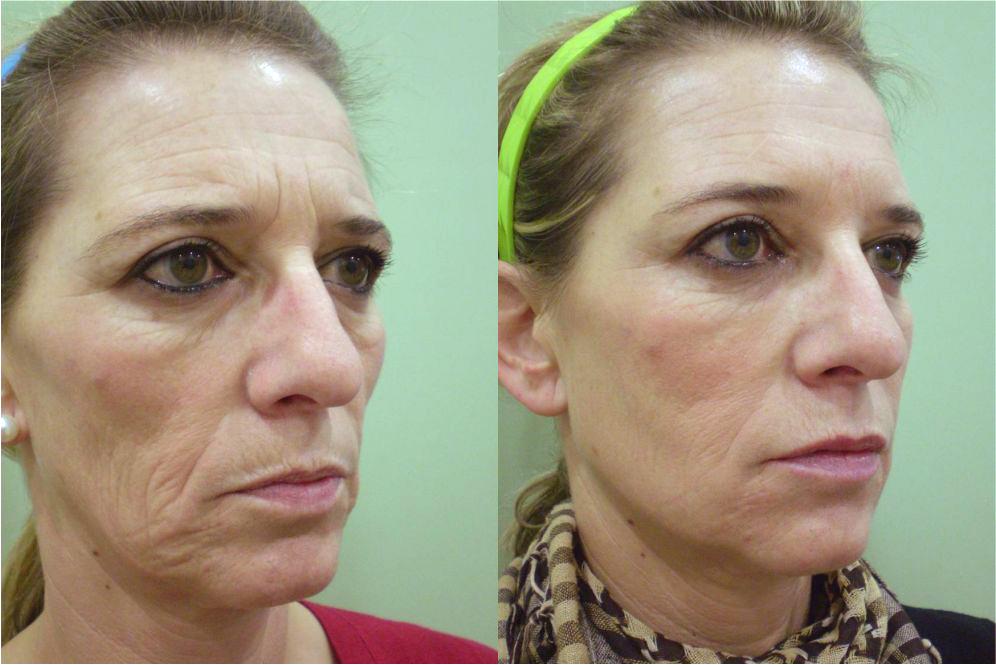 antes y después bioplastia, bioplastia facial precio,