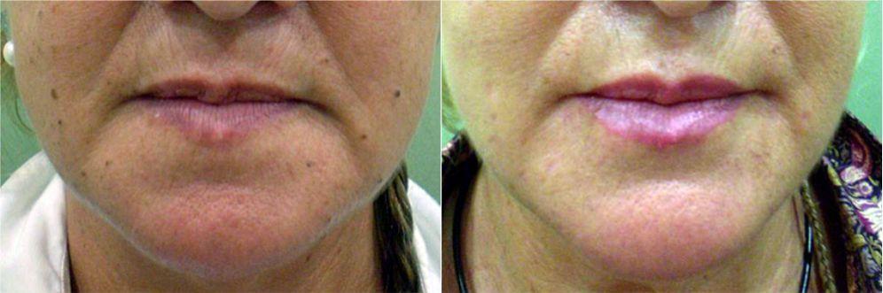 Antes y después tratamiento sonrisa triste, Antes y después boca triste