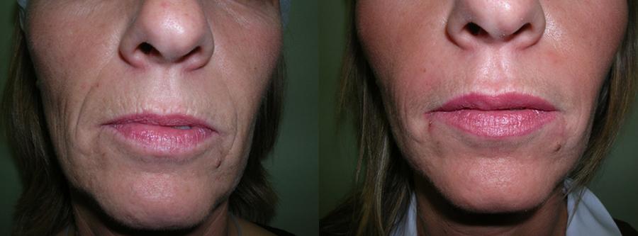 antes y después remodelación de labios