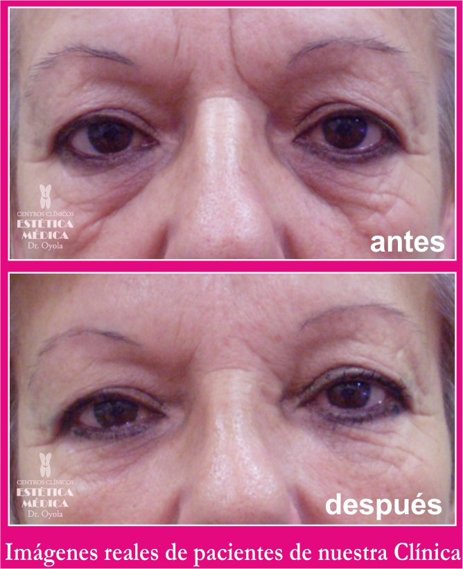 eliminar bolsas ojos con láser, corregir bolsas ojos sin cirugía,
