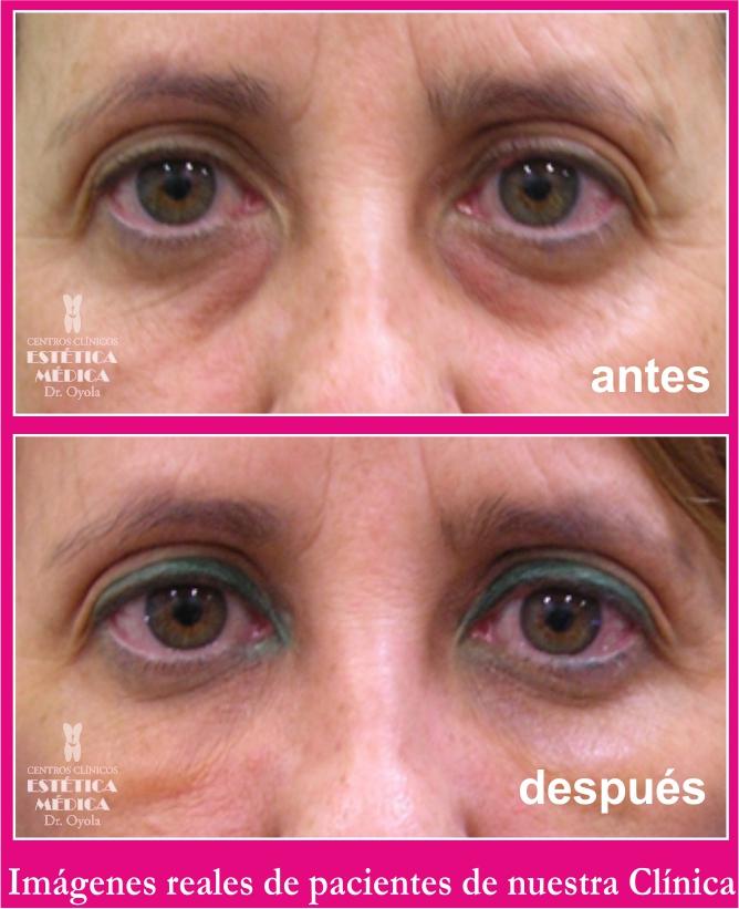 tratamiento ojeras y bolsas, eliminar bolsas ojos sin cirugia