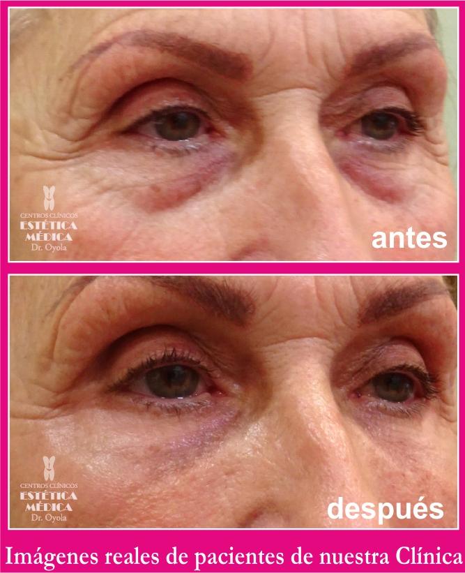 quitar bolsas y ojeras, eliminar bolsas de los ojos sin cirugia, tratamiento bolsas ojos sin cirugia