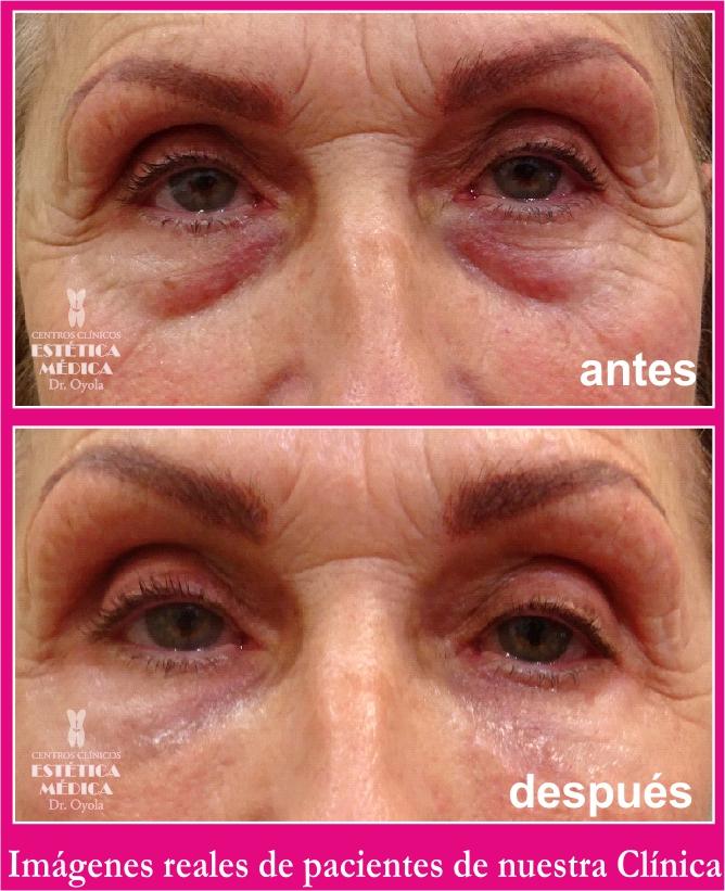 tratamientos bolsas en los ojos, como eliminar bolsas y ojeras, operación de ojeras y bolsas