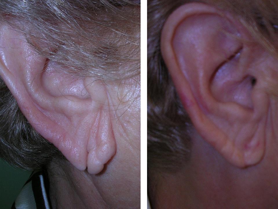 antes y después cirugía lóbulo rasgado, cerrar agujero oreja rasgado precio