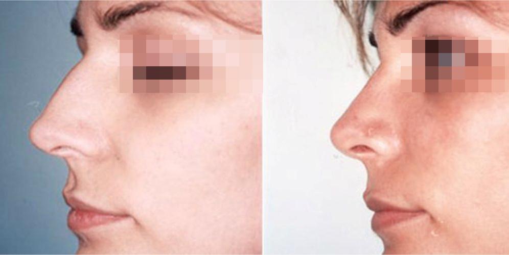 Rinoplastia antes y después de la cirugia