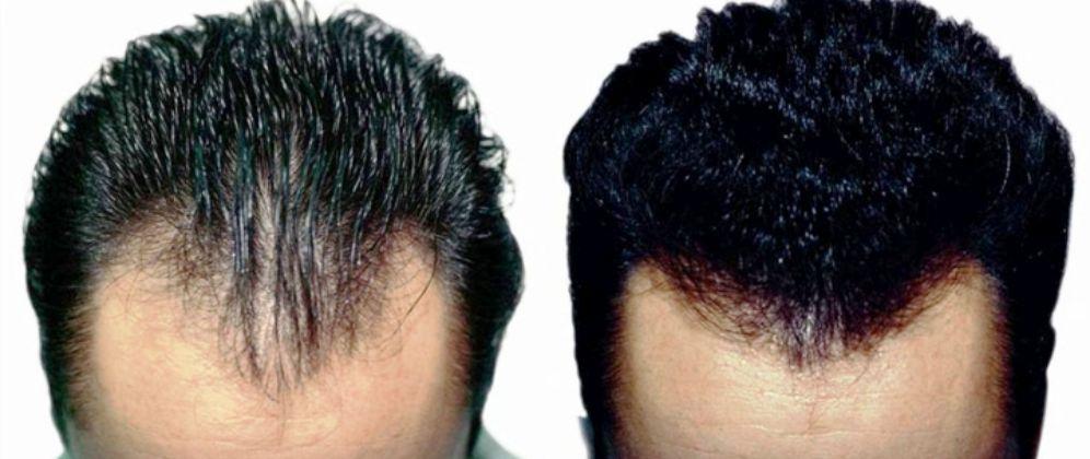 clínica de tratamiento capilar, tratamiento capilar antes y después, precio clínica de Salamanca especializada en tratamiento capilar