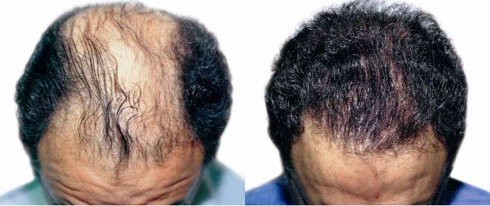 tratamientos capilares antes y después, resultados tratamiento capilar Cáceres, clínica de tratamientos estéticos capilares
