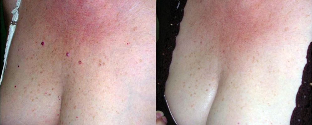 Tratamientos para rejuvenecer cuello y escote, rejuvenecimiento de cuello y escote antes y después, precio tratamiento manchas escote clínica Cáceres