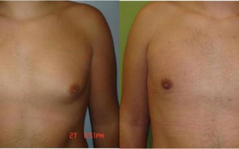 ginecomastia masculina tratamiento en clínica de Salamanca, precio tratamiento ginecomastia masculina