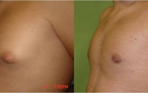 Antes y después de ginecomastia, ginecomastia tratamiento, precio tratamiento de ginecomastia en Cáceres, clínica especializada en ginecomastia Badajoz