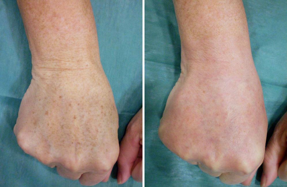 antes y después tratamiento manchas manos, rejuvenecimiento de manos antes y después, precio tratamiento de rejuvenecimiento de manos en Cáceres