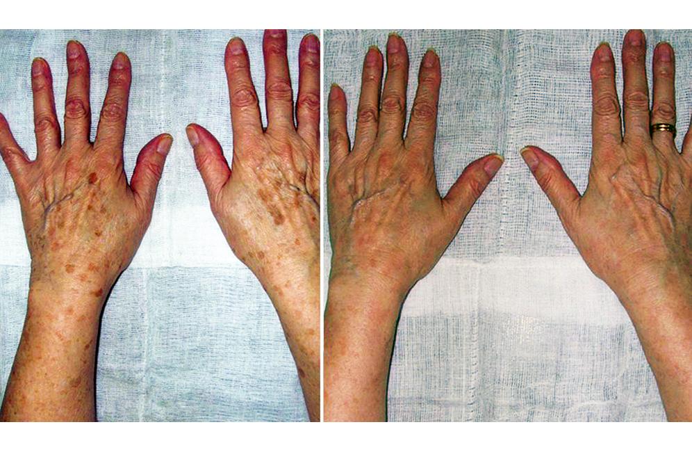 quitar manchas de las manos con láser, eliminar las manchas de las manos por la edad, tratamiento manchas manos antes y después, rejuvenecimiento de manos Badajoz