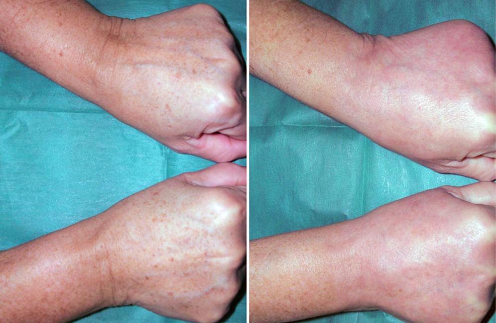 rejuvenecimiento de manos antes y después, precio quitar manchas manos, rejuvenecimiento de manos Salamanca
