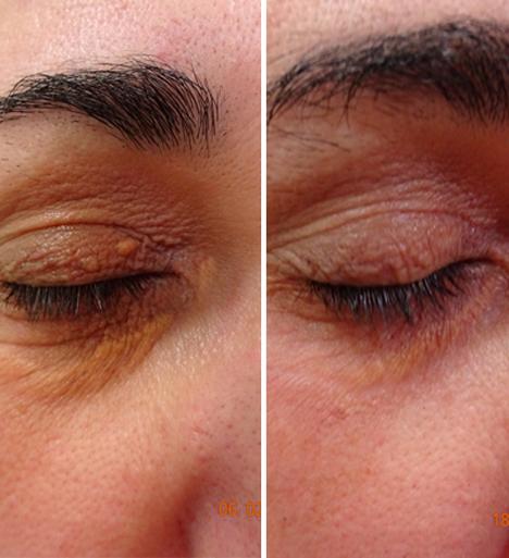 tratamiento xantelasmas en parpados, xantelasma precio, xantelasmas antes y después