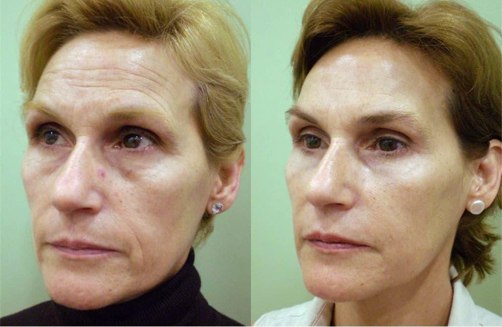tratamientos faciales de rejuvenecimiento antes y después
