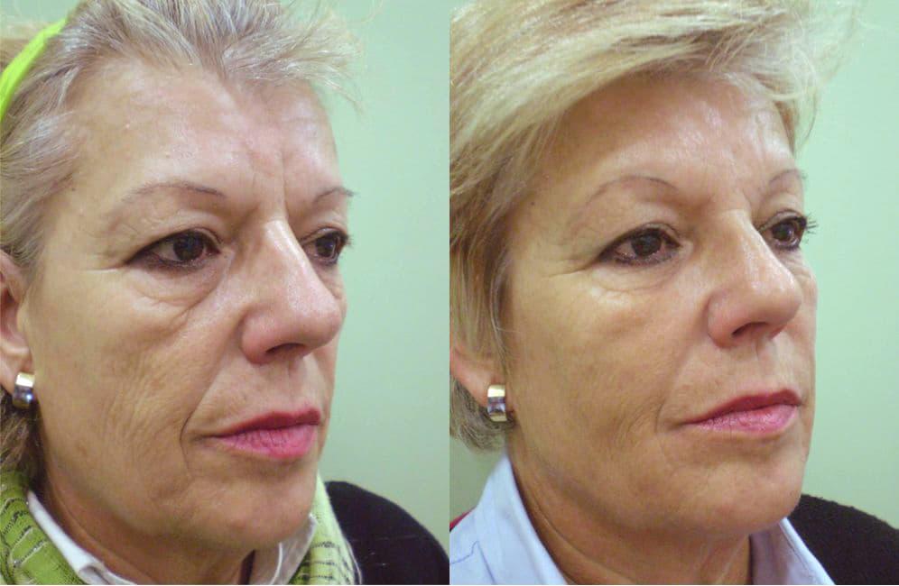 bioplastia facial con ácido hialurónico