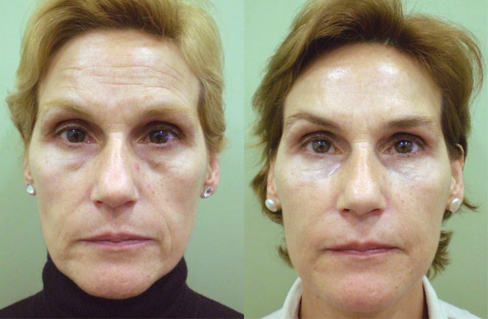 bioplastia facial antes y después
