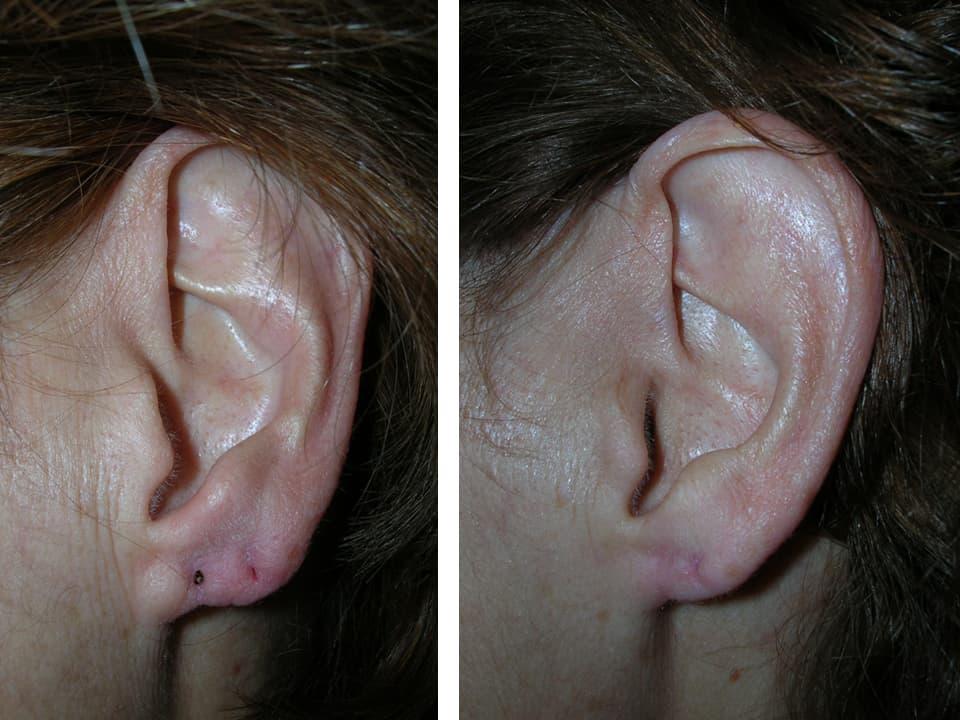 cerrar agujero oreja precio. antes y después de cerrar agujero de oreja