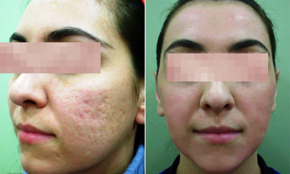 láser para acné, tratamiento de cicatrices de acné con láser, antes y después manchas de acné, tratamiento de cicatrices de acné con láser antes y después, , precio de eliminar cicatrices de acné con láser, equipo médico láser para cicatrices